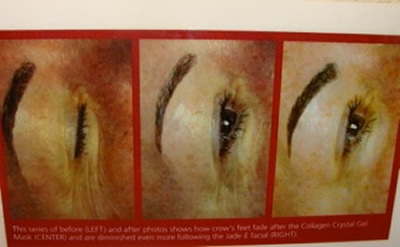 Before and After Photos of Jade-E facial rejuvenation treatment