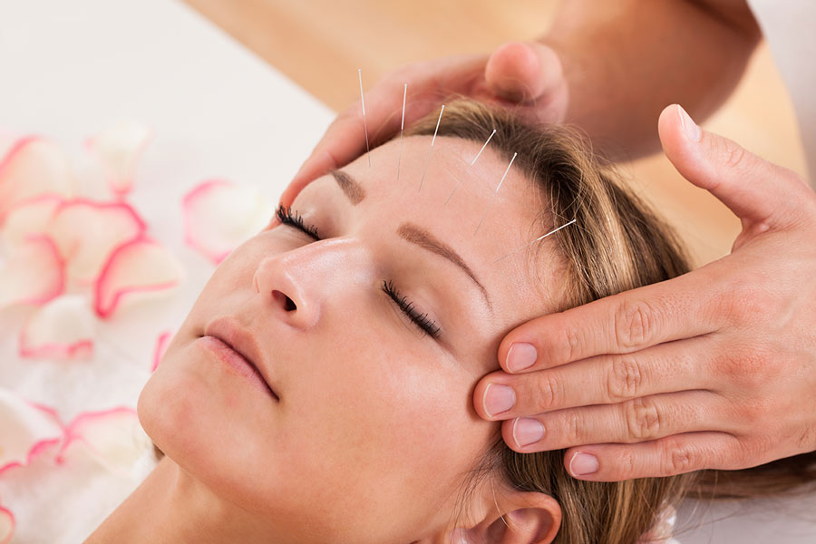 acupuncture-skin-conditions
