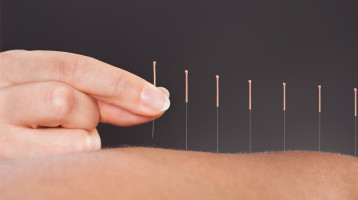 Acupuncture for Autoimmune Disorders