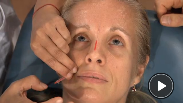 "Dr Oz Features Acupuncture ""Facelift"""