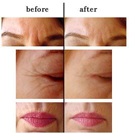 Before and After Photos-Aculift Facial