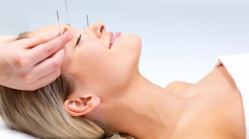 Acupuncture: The New Facelift?